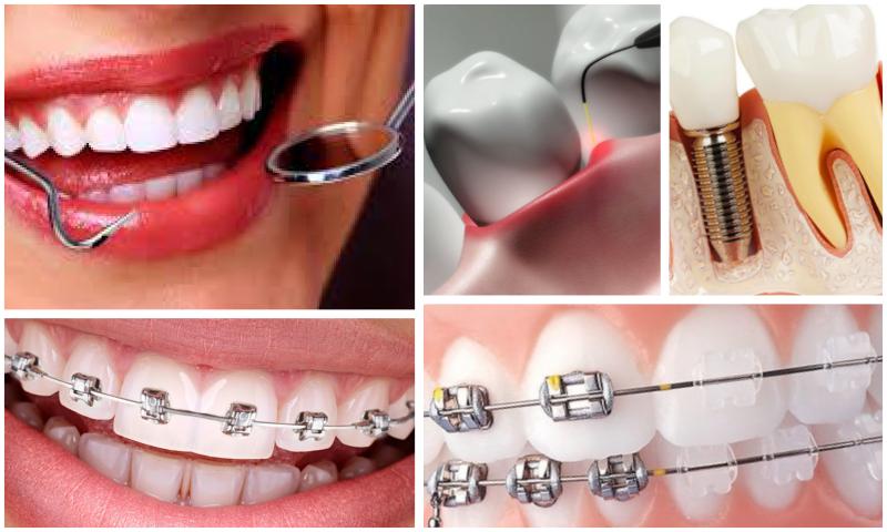 Ortodontik Bozukluk Nedir, Tedavisi Nasıl Yapılır