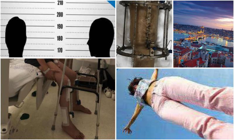 Türkiye'de Uzuv Uzatma -Limb Lengthening in Turkey