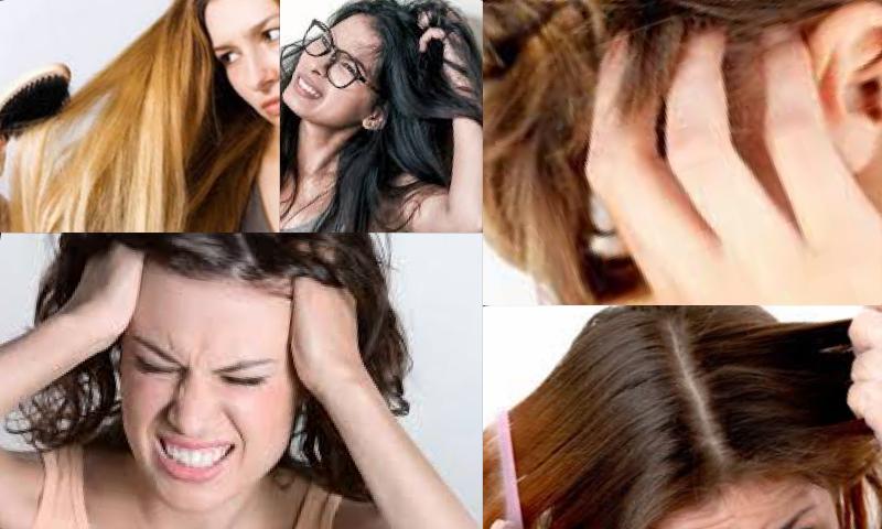 Kadınların Korkulu Kabusu Saç Diplerinde Ağrı