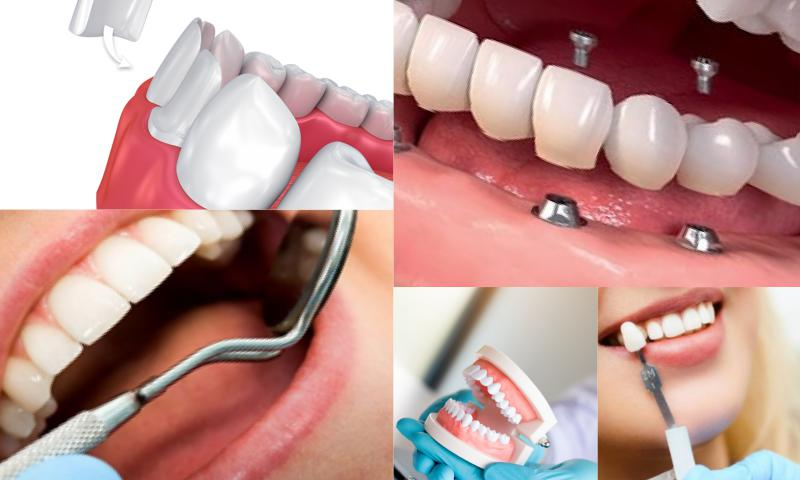 Bozulan Diş Sağlığı ve Estetiğinde Uygulanan Tedavi Yöntemleri